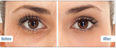 eye cream before and after