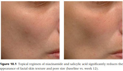 niacinamide before and after photo