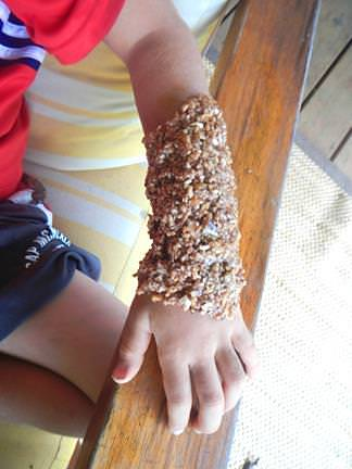 Comfrey root paste applied to a broken arm