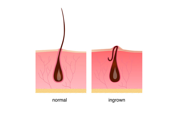 Visual of an ingrown hair compared to a normal hair