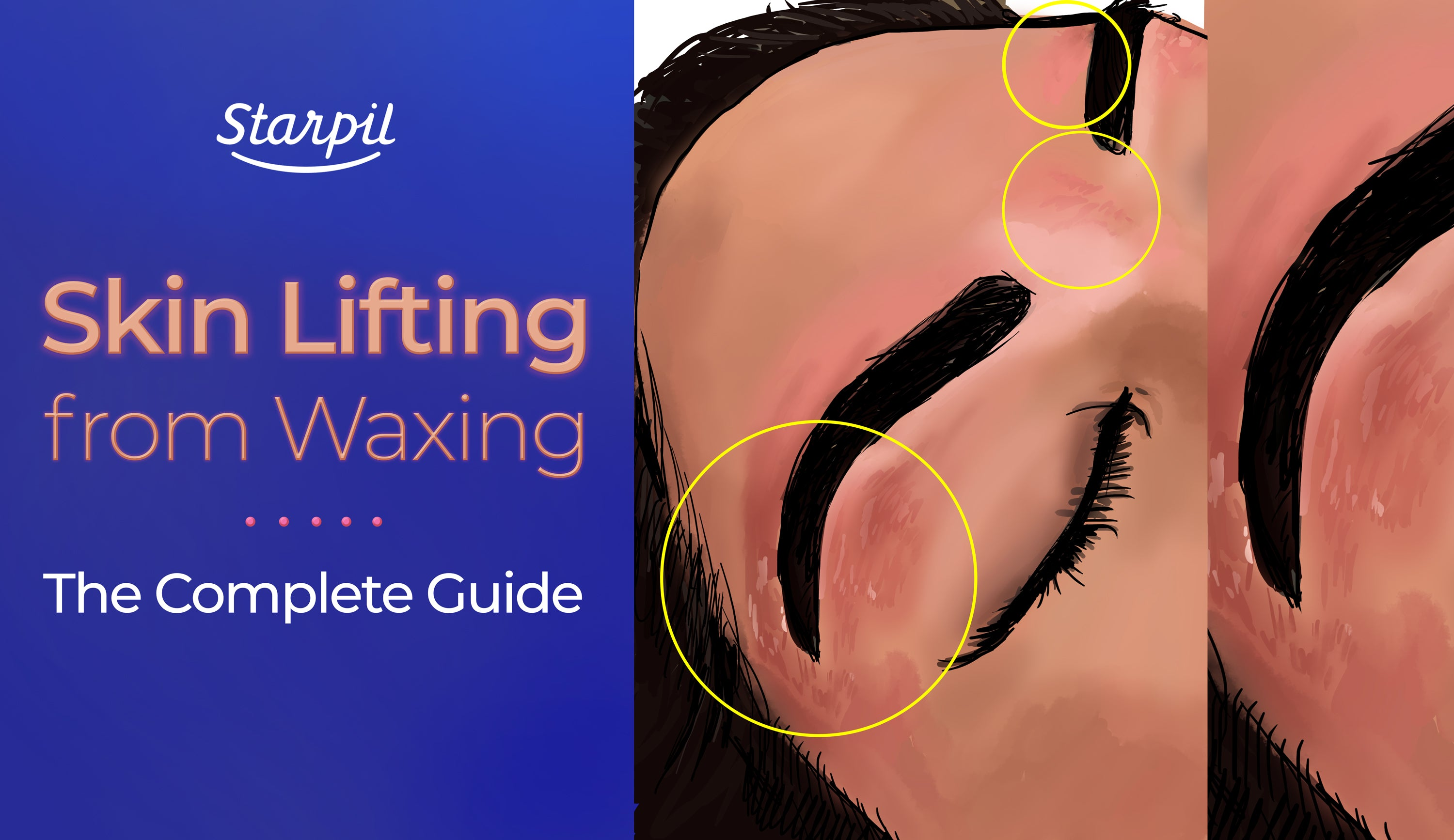 Skin Lifting from Waxing - Starpil Wax