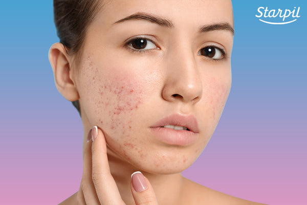 Woman with congested skin on the face