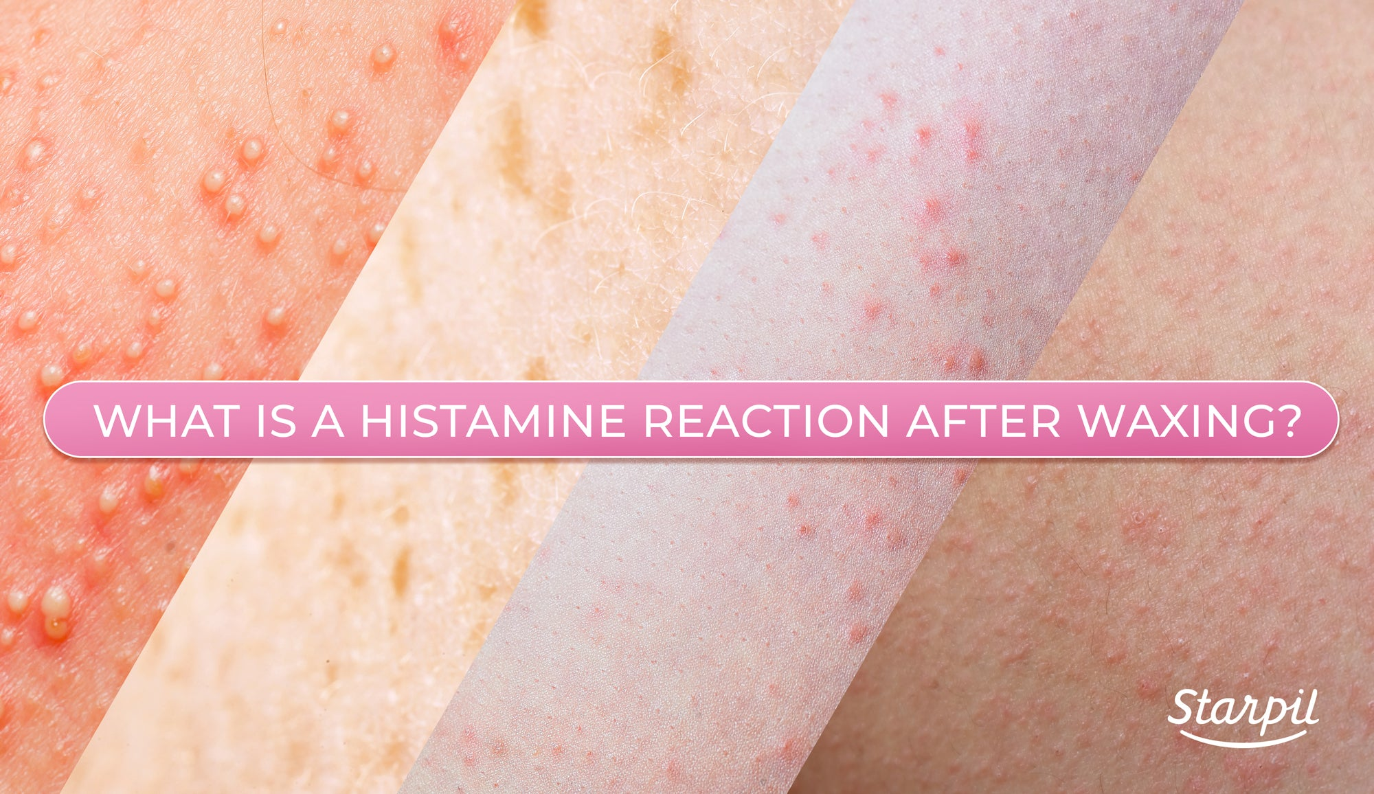 histamine reactions after waxing