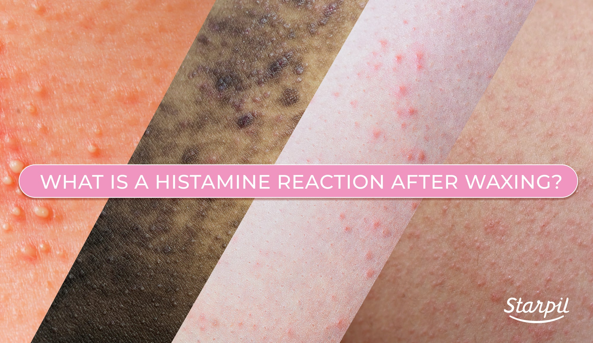 Histamine Reaction After Waxing