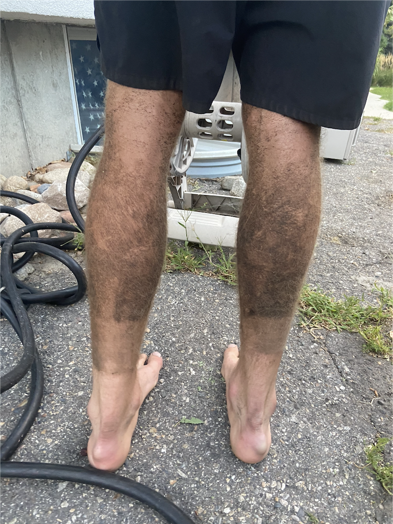 Photo of JMs dirty legs after his adventure up the WURL