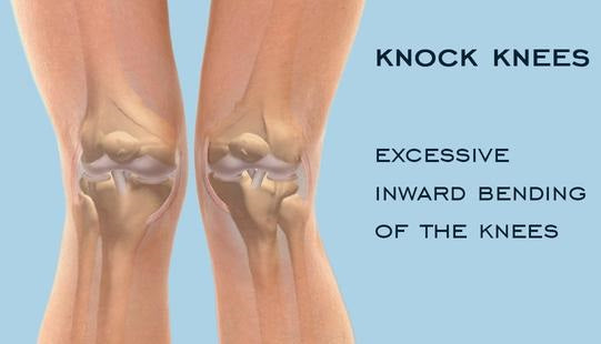 What causes knock knees?