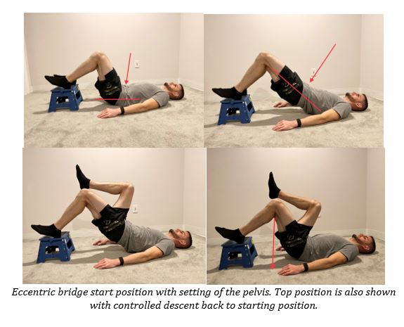 Eccentric Single Leg Bridge