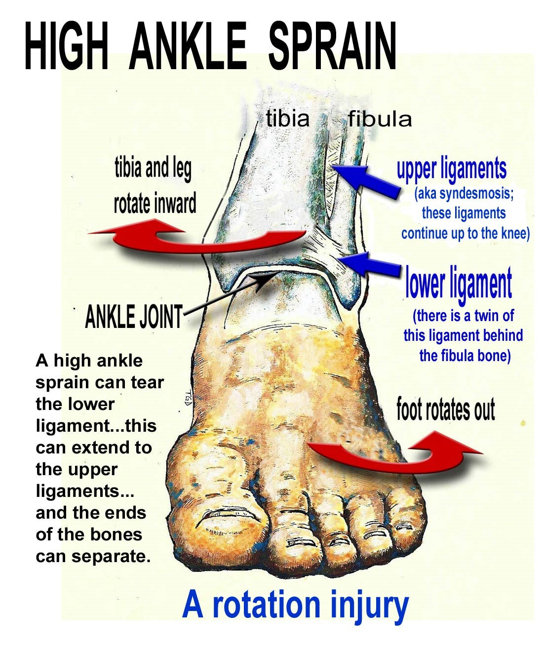 high ankle sprain picture