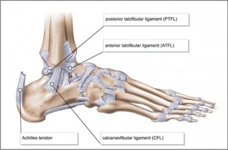 lateral ankle sprain ligaments