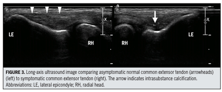 ultrasound of tennis elbow
