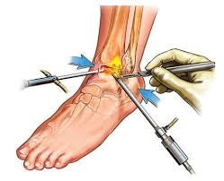 surgery for ankle sprain