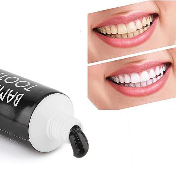 WHITE T® - tooth whitening treatment