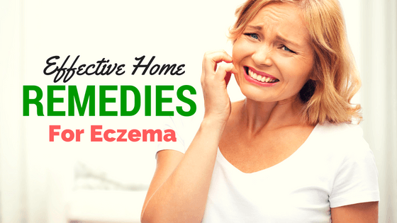 Effective Home Remedies For Eczema