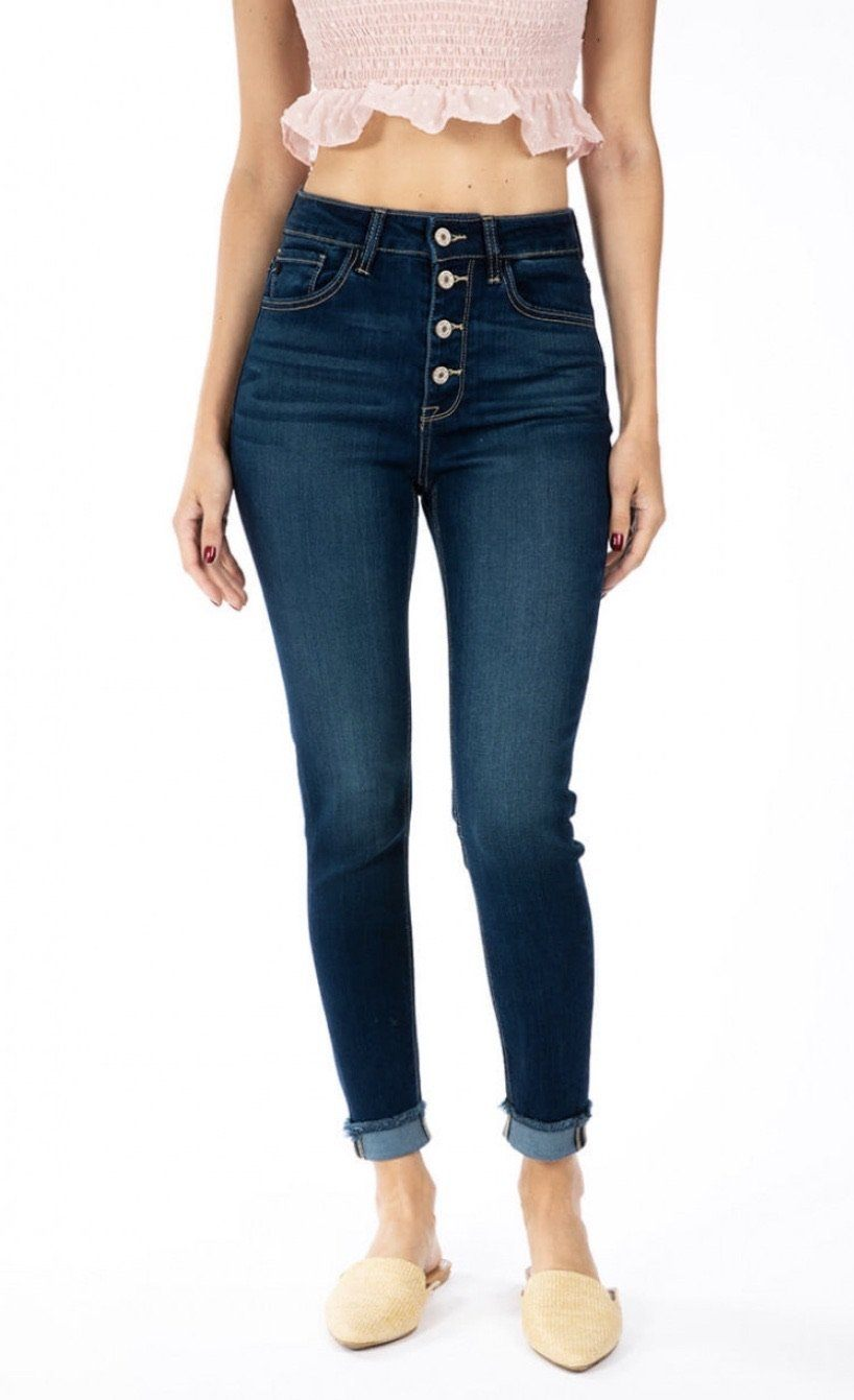 The Rowan Kancan Button Fly Skinny Jeans Skinny Jean KanCan