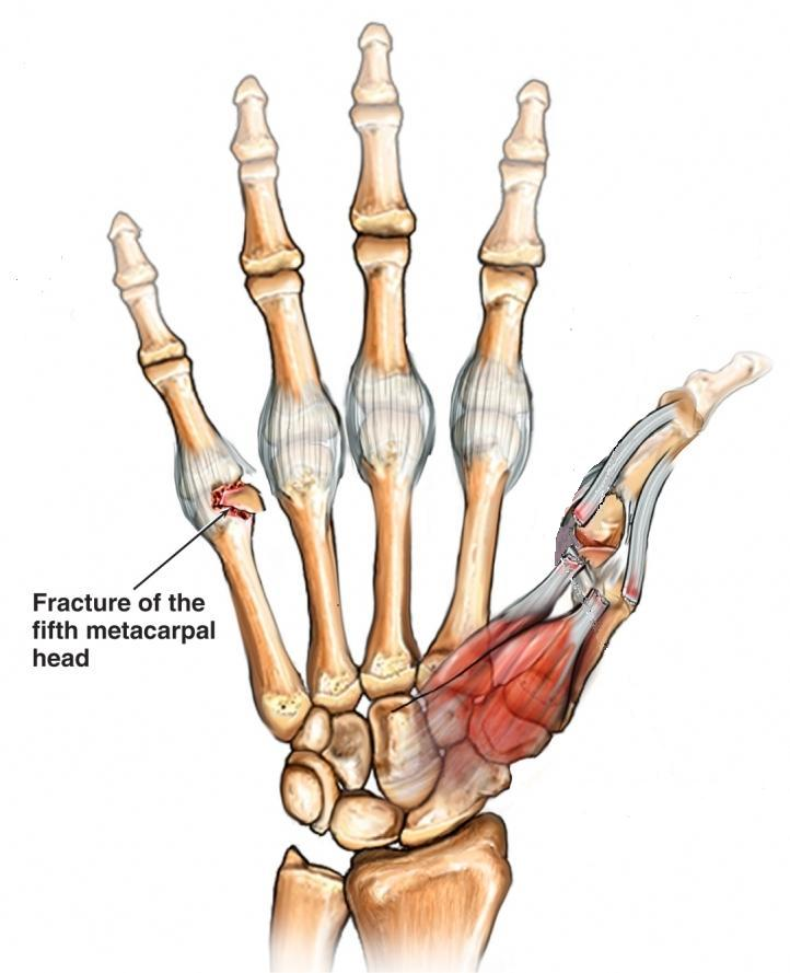 Trigger Finger Causes, Signs, Symptoms and Treatment