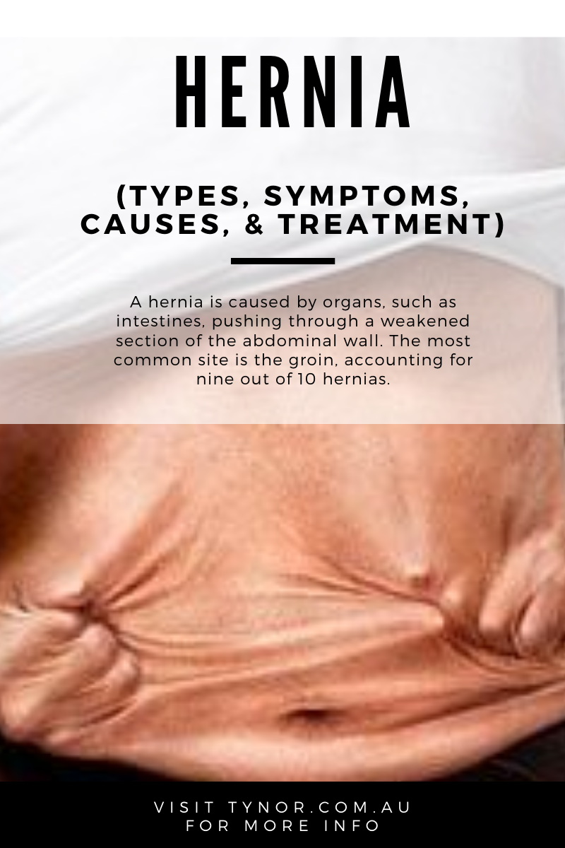 Hernia types, causes, treatment
