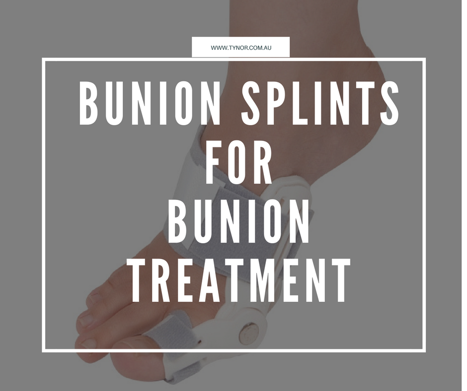 Bunion Splints for Bunion Treatment