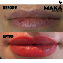 Lip Contour and Full Lip Blush - MAKASkincare
