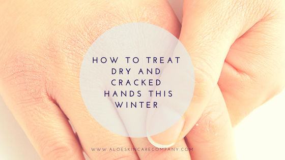 How to Treat Dry and Cracked Hands This Winter