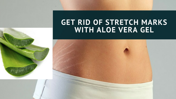 Get Rid of Stretch Marks with Aloe Vera Gel