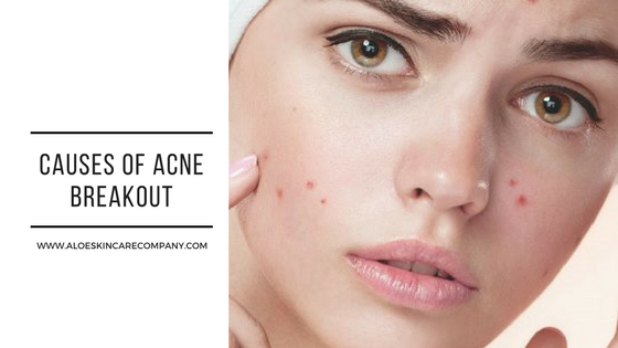 Causes of Acne Breakout