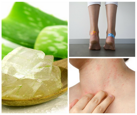 Aloe_Vera for Natural Skin Healing