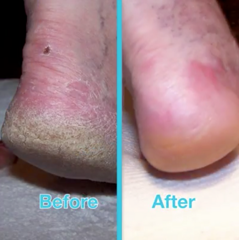 official shop low price sale get online Cracked Skin Foot Repair Cream – Our Best Buy Store