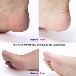 Waterproof Electric Foot Callus Remover