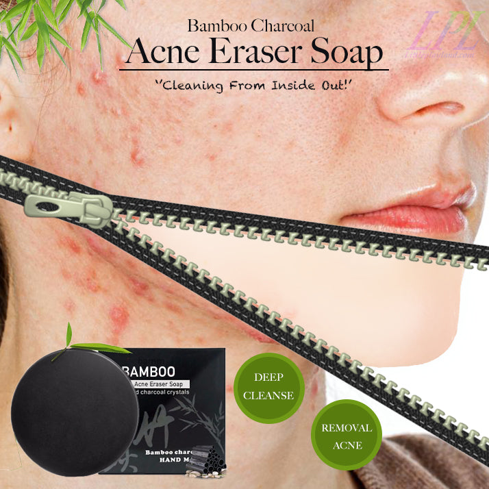 Bamboo Charcoal Acne Eraser Soap