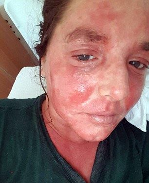 Image of woman with severe Eczema before cbd treatment