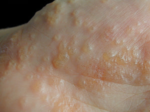 Risk Factors & Symptoms of Eczema