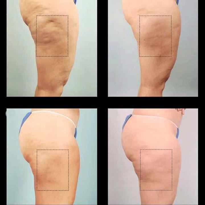 Cellulite Removal Cream