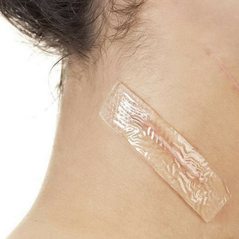 Silica Scar Therapy Patch