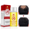Image of 2018 latest hair loss fast growing essential oil