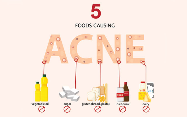 Acne Diet: 9 Foods That Cause Pimples(Plus Foods That Clear Them)