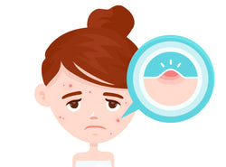 Acne: Causes, Symptoms, Treatments & Prevention Tips
