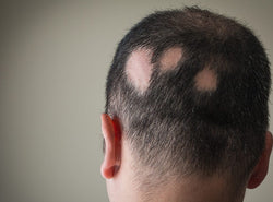 Alopecia Areata - Here's Everything You Should Know About It