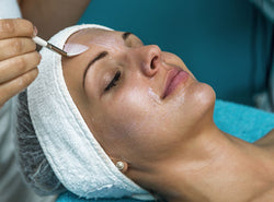 Chemical Peels: Everything You Have Ever Wanted To Know About Them