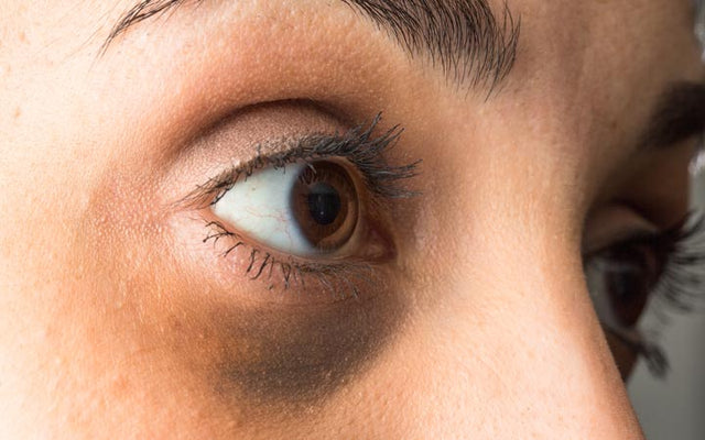 Dark Circles Under Your Eyes: Causes, Treatments & Prevention Tips