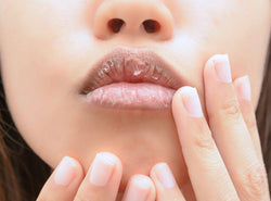 How To Soothe Chapped & Dry Lips: 5 Causes, 5 Remedies & FAQs