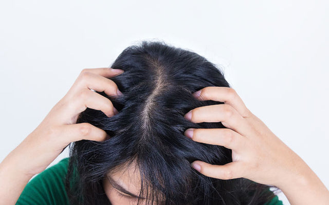 Dry Scalp Treatments - Home Remedies, Oils, Diet & More