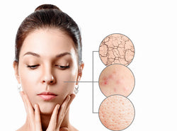 Dry Skin And Acne: Are You Treating It The Right Way?