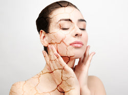 Dry vs Dehydrated Skin - Differences, Causes and Treatments
