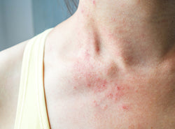 Skin Rash: An Emerging Symptom of Covid-19?