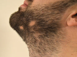 Is Alopecia Barbae Causing Bald Patches On Your Beard?