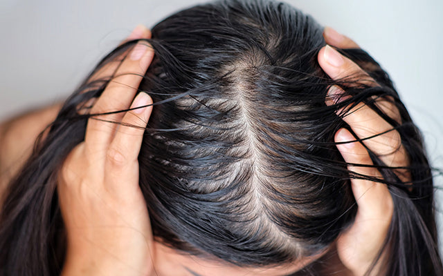 Oily Scalp With Dry Ends: Why & How To Control?
