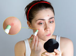 8 Great Ways To Hide Your Pimples!