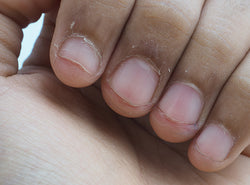 12 Reasons Why Your Fingertips May Be Peeling