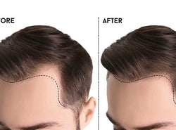 Understanding The Different Types Of Hairlines For Men And Women
