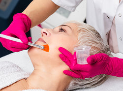 Chemical Peel Vs Laser Resurfacing: Which One Is Better?